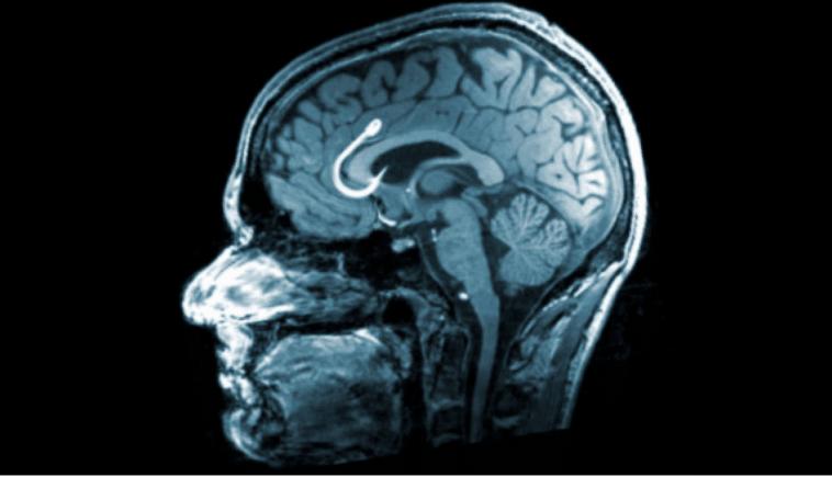 مغز شما در انجمن