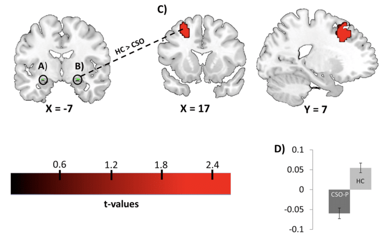 Diminished fronto-limbic functional connectivity in child sexual offenders